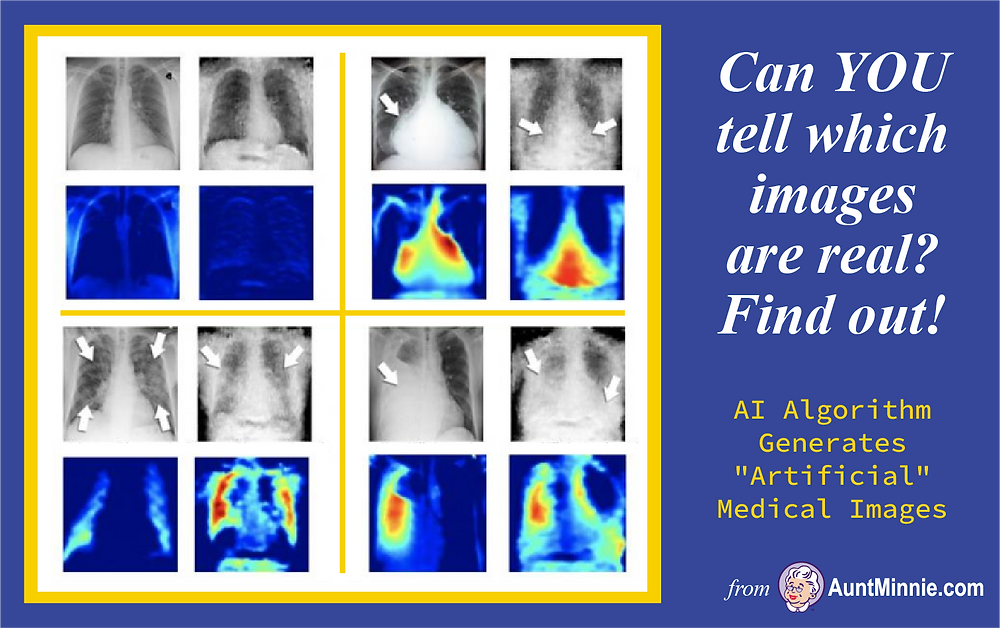 "AI Algorithm Generates ""Artificial"" Medical Images"