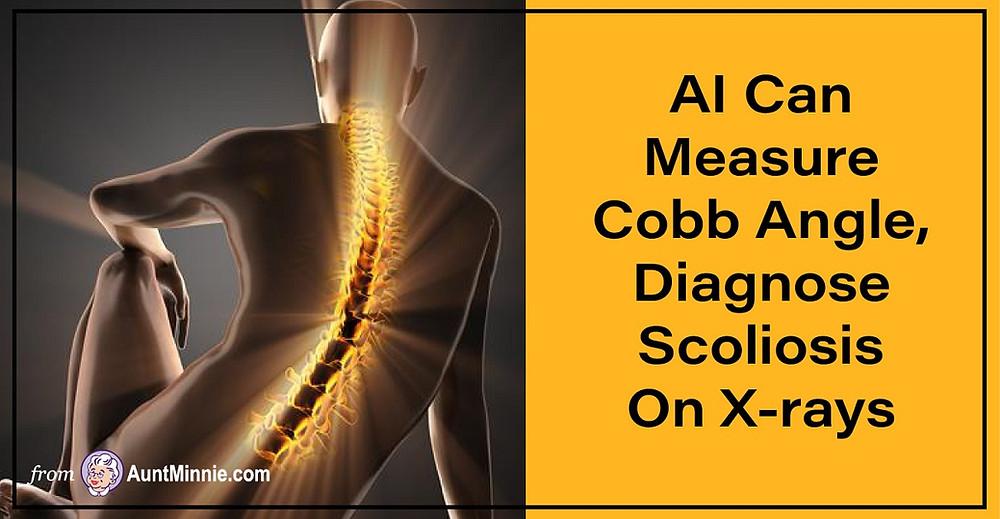 AI Can Measure Cobb Angle, Diagnose Scoliosis On X-rays