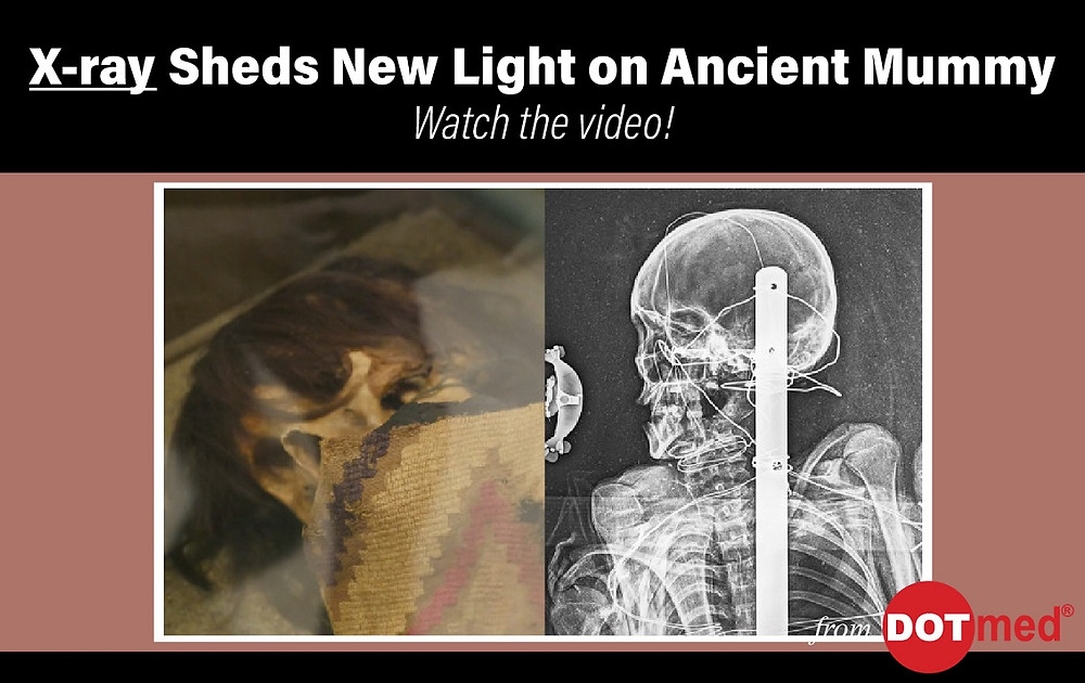 X-ray sheds light on ancient Peruvian mummy at Everhart Museum