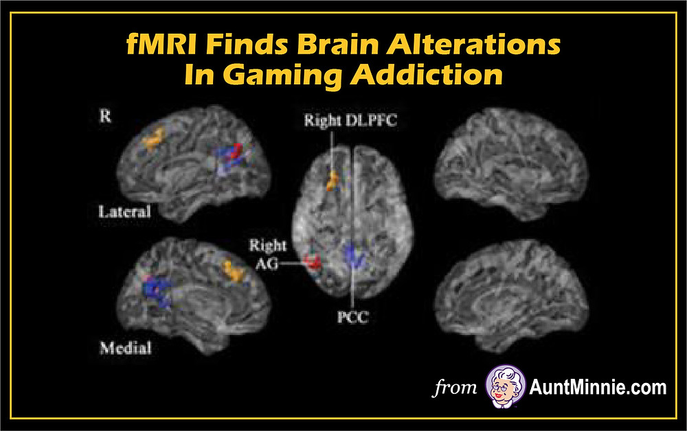 fMRI Finds Brain Alterations in Gaming Addiction