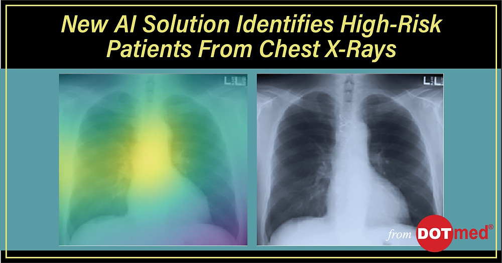 New AI Solution Identifies High-Risk Patients From Chest X-Rays