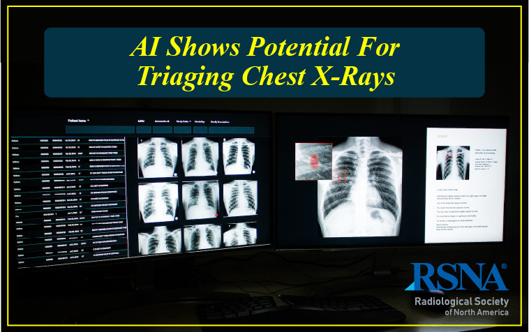 AI Shows Potential for Triaging Chest X-Rays