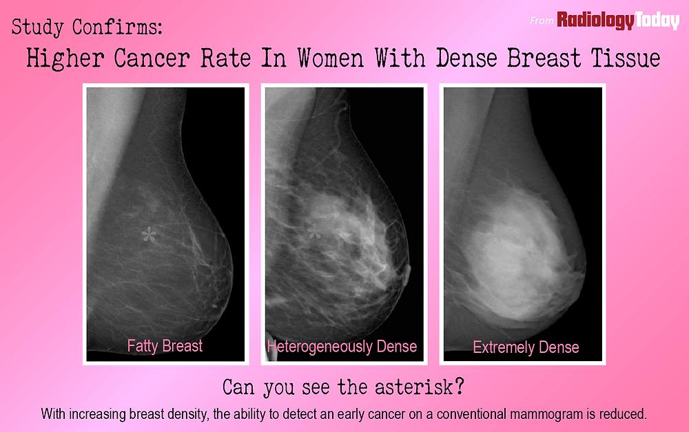 Cancer in Dense Breast