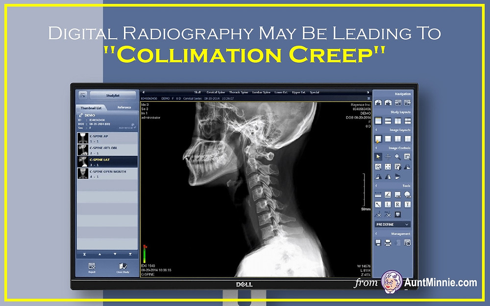 """Digital Radiography May Be Leading To """"Collimation Creep"""""""