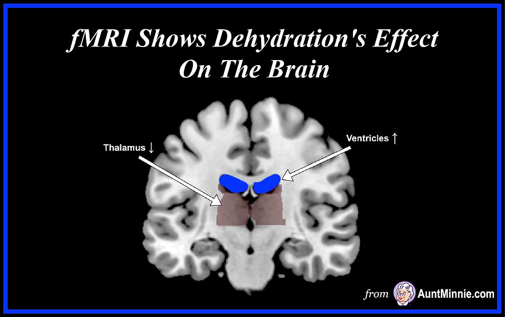 fMRI Shows Dehydration's Effect On The Brain