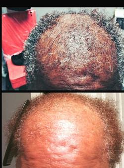 BjutifulSoul Hair Loss