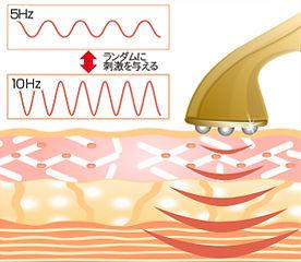 電気刺激の図