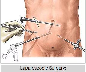 Laparoscopy Singapore