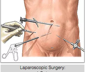 Laparoscopy Singapore