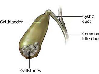 Gallbladder Stones