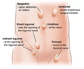 where do hernias appear