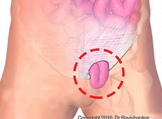 Single Incision Laparoscopic Hernia Surgery Singapore