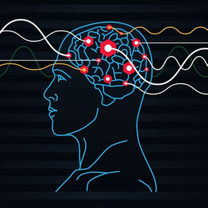 Understanding the truth about ECT (Electroconvulsive Therapy)