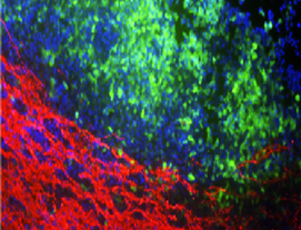 Munson awarded R&D grant with Foff lab to develop new 3D models of glioma