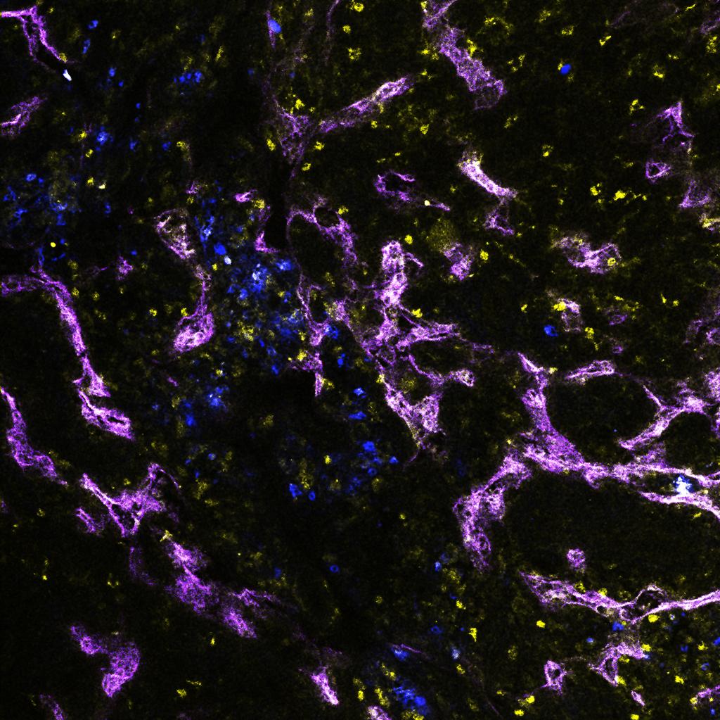 Lymphatics (purple) in breast cancer