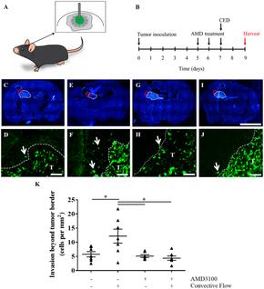 Convection increases invasion of glioma in vivo