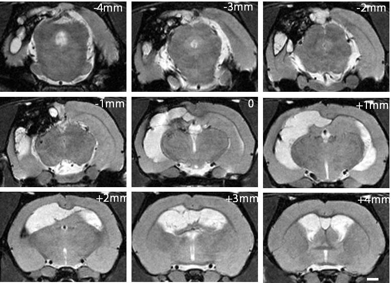 MRI sequence of glioma
