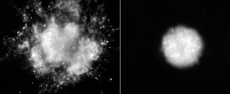 Primary glioma spheroids in 3D