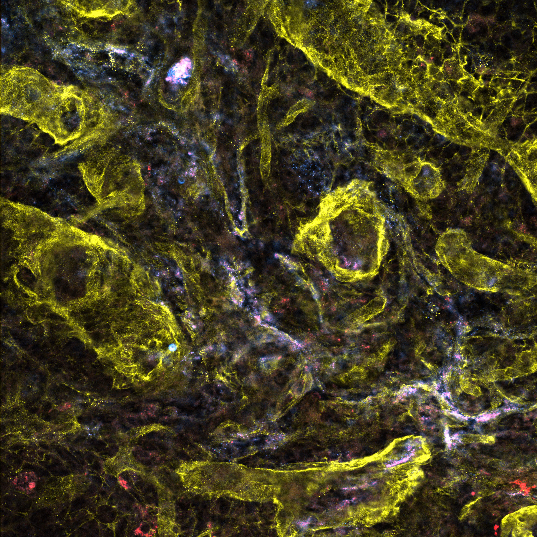 Lymphatics and matrix in cancer