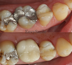 Crown on Back Tooth