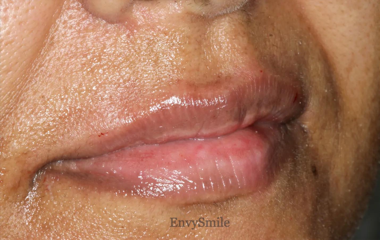 Lips 0.5ml