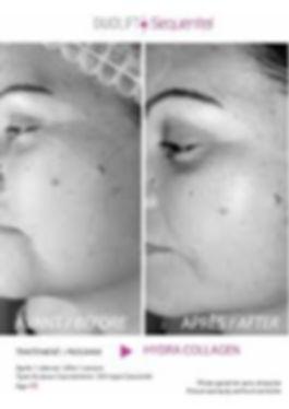 Soins visage anti-âge avec la technologie Advance Beauty au Centre Aloessence