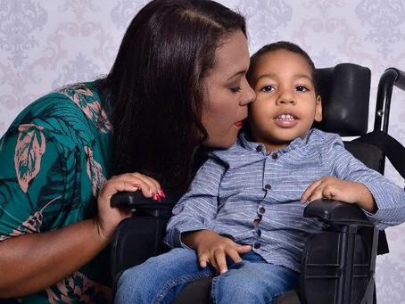 Faltam leites especiais para crianças com microcefalia em Jaboatão