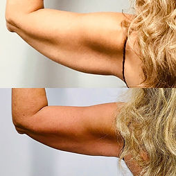 Arms Before & After.jpg