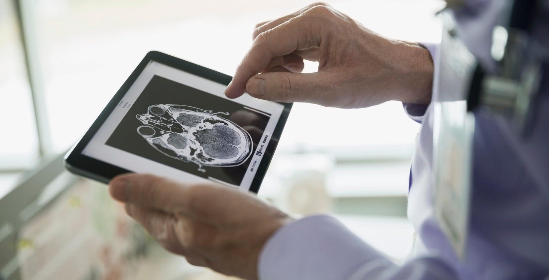 Teleradiology: Present and Future