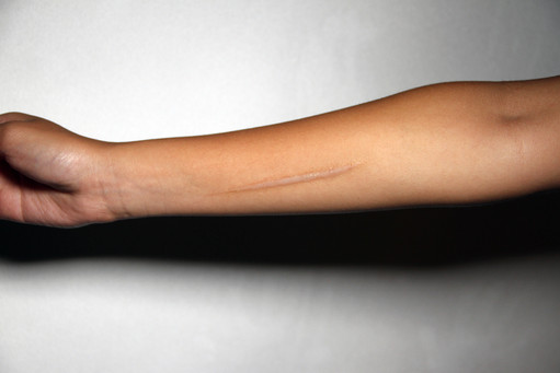 Keloid scar