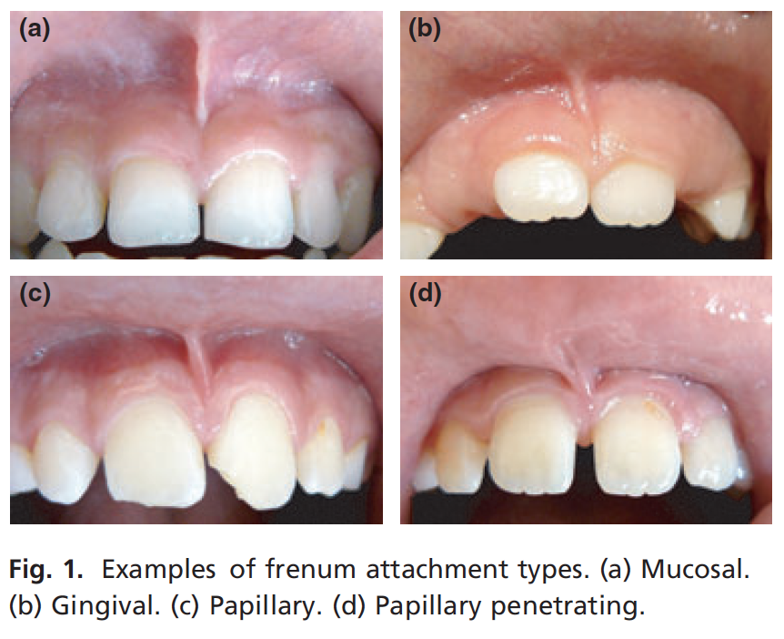 upper-lip frenum attachments