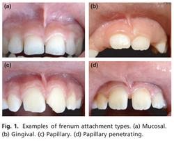 upper-lip frenum attachments