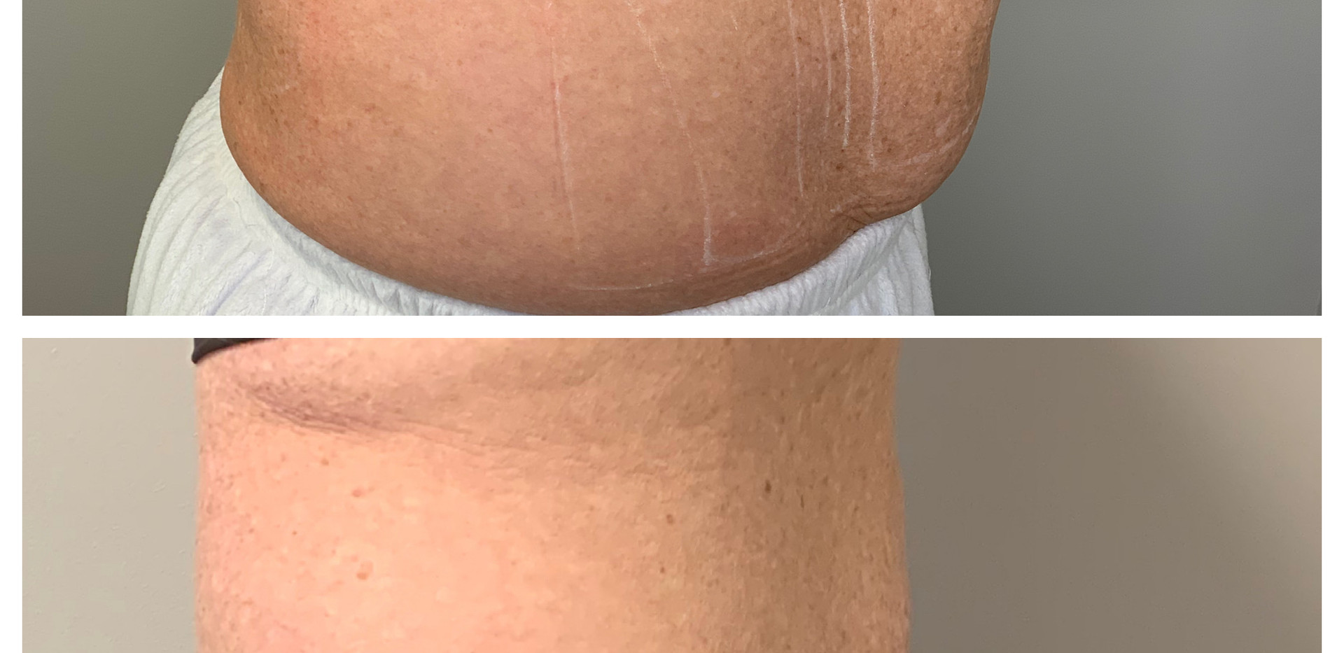 Fat reduction before and after.JPG