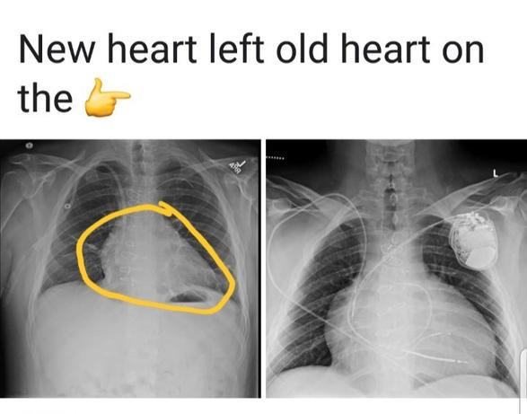 Jeremy - Heart Recipient