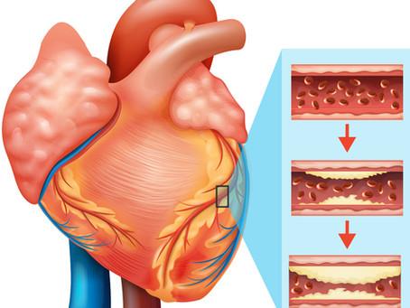 L'alimentazione come cura per l'ipercolesterolemia