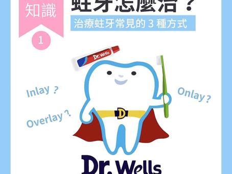 士林牙醫_蛀牙的三種治療方式