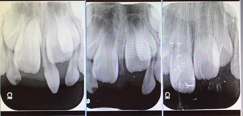 乳牙多生牙