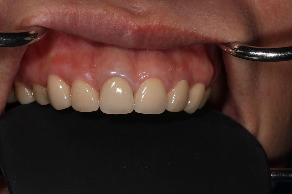 (圖:低位牙齦術後照)