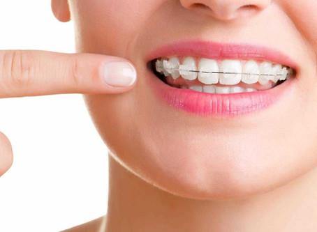 為何要進行牙齒矯正呢?