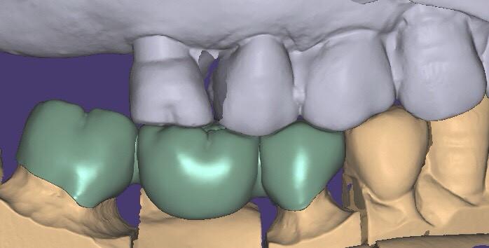 此照片由Dr. Wells高宇鋒牙醫師提供