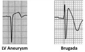 ECG-Complex-ST-segment-elevation-in-Brug