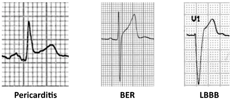 ECG-Complex-ST-segment-elevation-in-peri