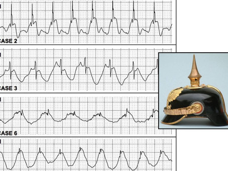 Causes of ST Elevation