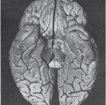 Clinical Case No. 22048 man born in 1861