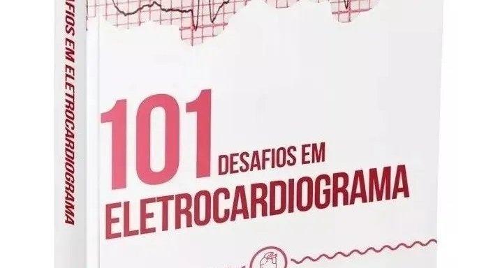 101 DESAFIOS EM ELETROCARDIOGRAMA