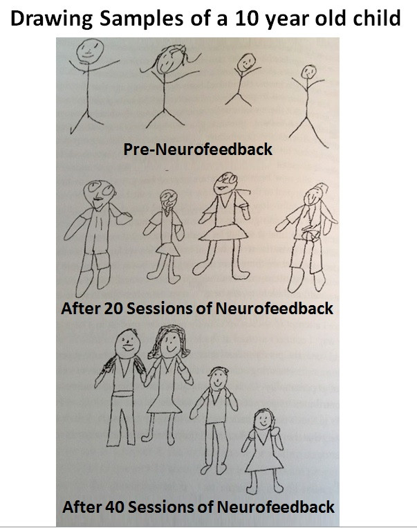 Changes in Drawing Potential of a 10 year old boy after 20 and 40 neurofeedback sessions.