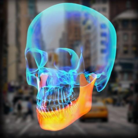 CT Scan of Skull for TMJ