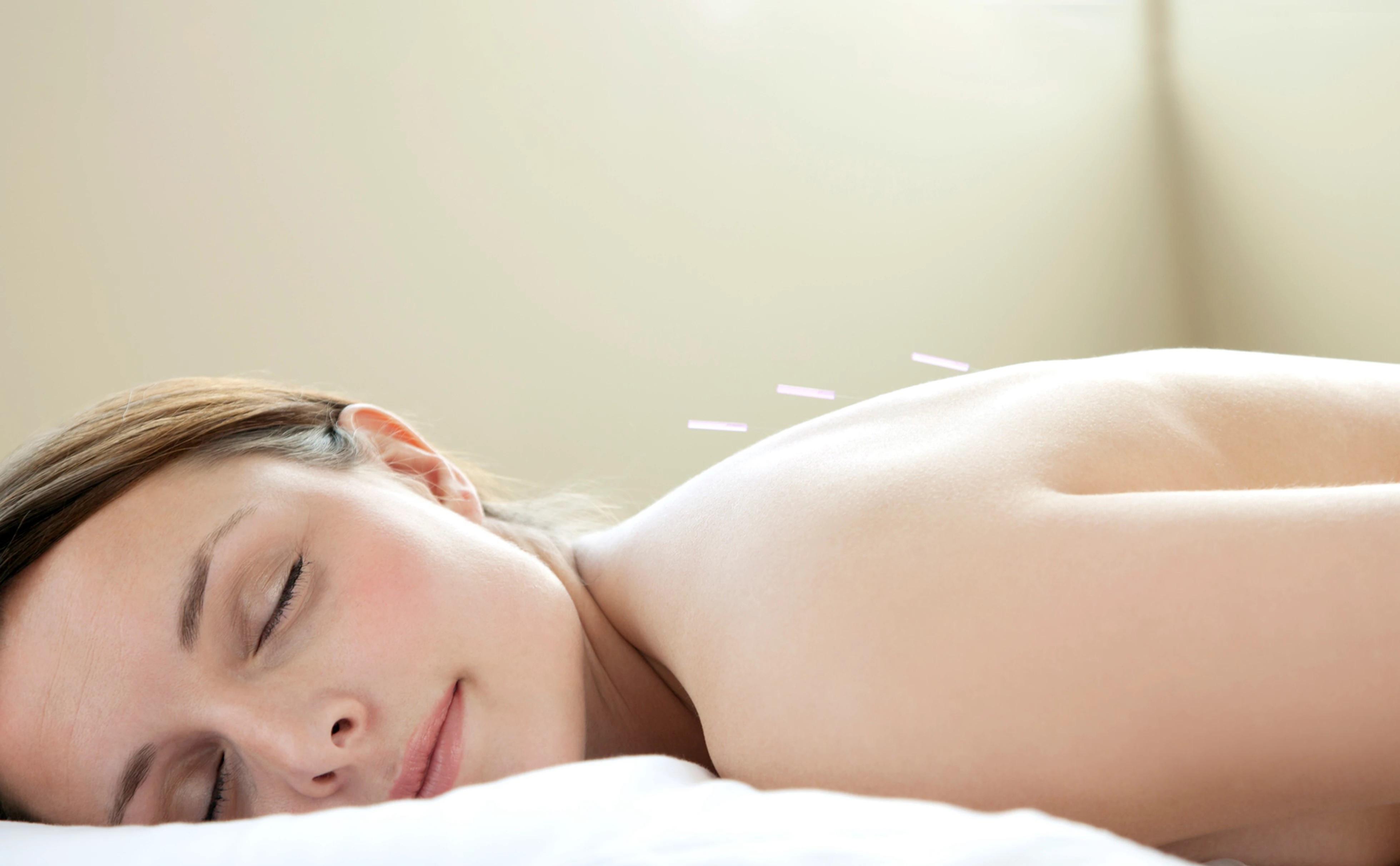 Deluxe Acupuncture