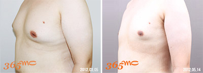 accessory breast lipo suction