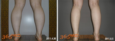 calf liposuction